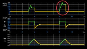 異常波形,肺コンプライアンス低下
