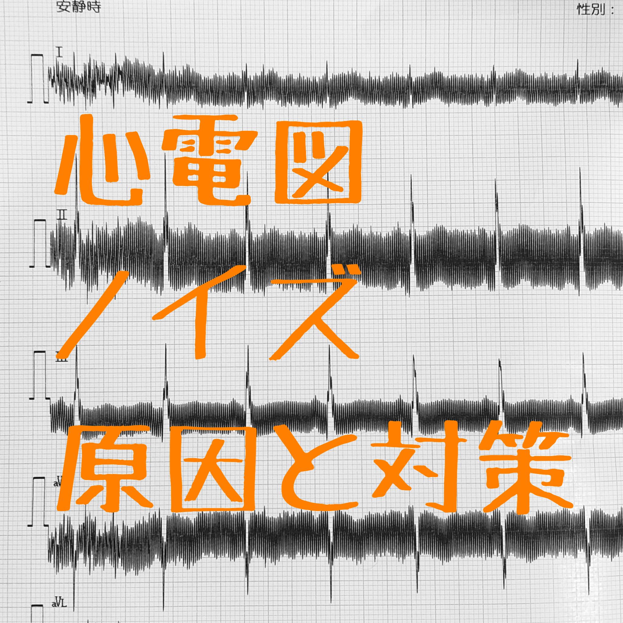 心電図にノイズが混入!原因と対策