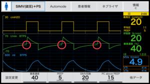 人工呼吸器,オートPEEP,Auto-PEEP