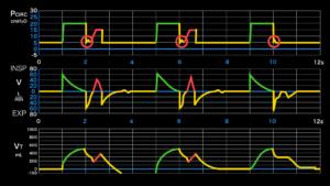 ダブルトリガー,二段呼吸,人工呼吸器