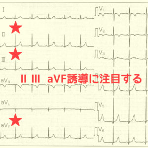 Ⅱ Ⅲ aVF誘導に注目