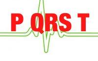 心電図がP波で始まる理由ー心電図にまつわるトリビア