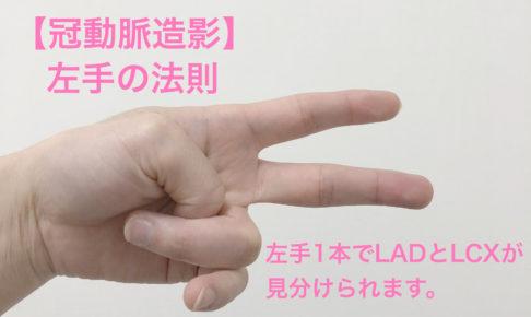 冠動脈,LAD,LCX