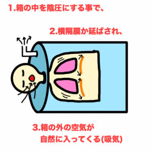 鉄の肺,人工呼吸器