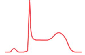 心電図,ST上昇