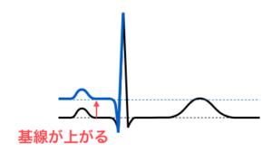 心電図,ST低下